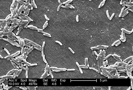 Campylobacter fetus