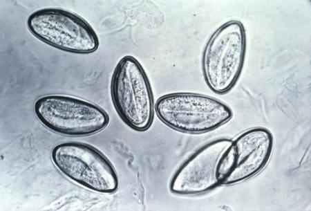 Analiza fecalelor pe ouă de helminth și chisturi de protozoare