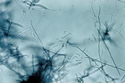 Стрептомицеты - представители порядка Actinomycetales