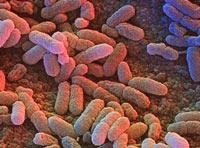 Salmonella enterica enterica