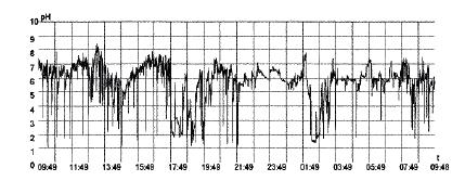 Рис. 2. Суточная рН-грамма пищевода больного М., 50 лет