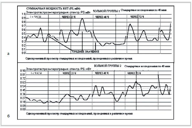 Рис. 1. Электрогастрография. Динамика суммарной мощности ЖКТ (РS, мВт). а — у больного М. (1-я группа); б — у больного Н. (2-я группа).