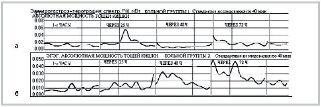 Рис. 4. Электрогастроэнтерография. Динамика абсолютной мощности тощей кишки (Рт, мВт). а — у больного М. (1-я группа); б — у больного Н. (2-я группа).
