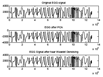 Fig. 2. Denoising of EGG signal with Haar wavelet transforms