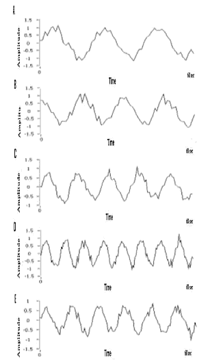 Figure 8. Waveforms for different disease patterns. Normal patient Waveform with 3 cycles per minute as frequency (recording A). A dyspepsia patient wave pattern (recording B). A Nausea patient wave pattern (recording C). A Vomiting patient wave pattern (recording D). An Ulcer patient wave pattern (recording E)
