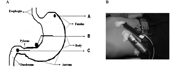 Figure 3. Active Electrodes Positioning for Recording EGG