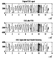 Figure 4. Denoising of EGG signal with Haar wavelet transforms
