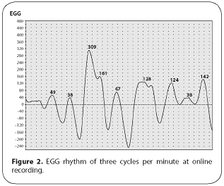 Figure 2. EGG rhythm of three cycles per minute at online recording