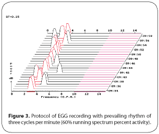 Figure 3. Protocol of EGG recording with prevailing rhythm of three cycles per minute (60% running spectrum percent activity)
