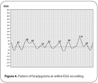 Figure 4. Pattern of bradygastria at online EGG recording