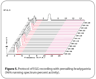 Figure 5. Protocol of EGG recording with prevailing bradygastria (96% running spectrum percent activity)