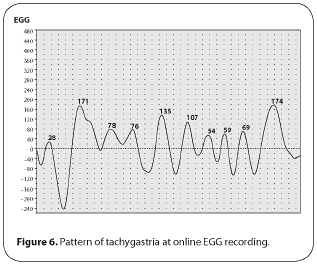 Figure 6. Pattern of tachygastria at online EGG recording