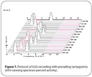 Figure 7. Protocol of EGG recording with prevailing tachygastria (60% running spectrum percent activity)