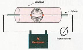 Рисунок 1. Импедансная цепь с генератором переменного тока
