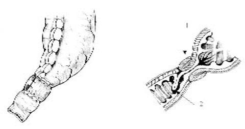 Вид операции, производимой для