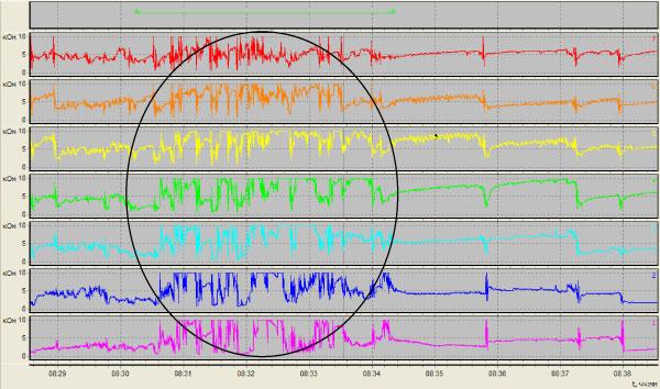 аэрофагия, воздух html