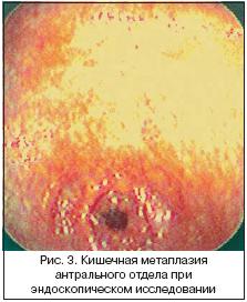 Очаговая гиперплазия слизистой желудка как лечить