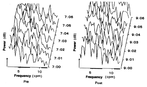 Fig. 4. EIG running spectrum. The EIG running spectrum of ten minutes in the cecum is shown before and after feeding. Feeding took place at 8:00. Power is shown as dB