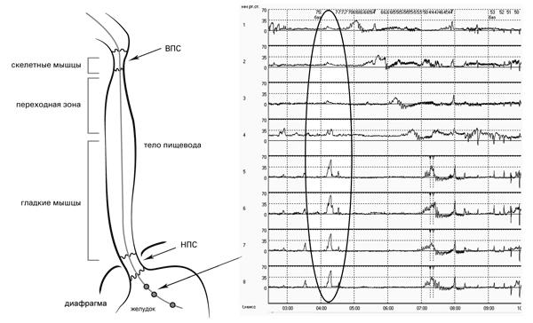 Рис. 3. Исследование двигательной функции пищевода: датчики 1-8 находятся в желудке. При глубоком вдохе отмечается повышение давления (позитивная дыхательная волна), при выдохе – падение давления (негативная волна) на всех датчиках