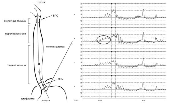 Рис. 4. Исследование двигательной функции пищевода. Датчики 5-8 при протягивании приближаются к зоне повышенного давления: на графике появляются дыхательные волны, их амплитуда увеличивается по мере приближения к нижнему краю НПС и кривая давления смещается выше базовой линии желудка