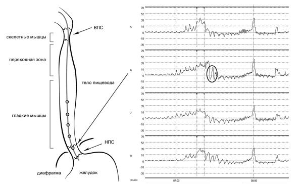 Рис. 6. Исследование двигательной функции пищевода. Датчики 5-8 располагаются в зоне повышенного давления: по мере удаления датчика от точки максимального давления наблюдается уменьшение амплитуды дыхательных волн и снижение уровня кривой к базовой линии