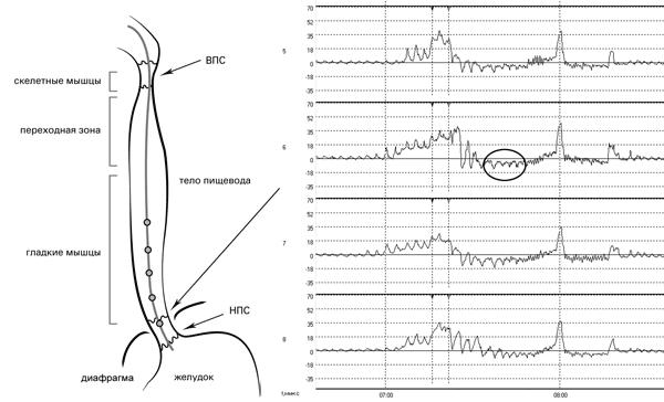 Рис. 7. Исследование двигательной функции пищевода. Датчики 5-8 располагаются в зоне повышенного давления: переход от брюшного отдела НПС к грудному, регистрируется резкое снижение кривой ниже базовой линии на 2-8 мм в связи с попаданием в зону отрицательного торакального давления