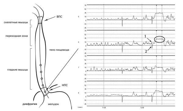 Рис. 8. Исследование двигательной функции пищевода. Датчики 5-8 располагаются в зоне повышенного давления (в брюшном отделе НПС). 1 – позитивная инспираторная волна. 2 – негативная экспираторная волна. Повышение манометрической кривой (плато) соответствует зоне повышенного давления (давления покоя НПС)