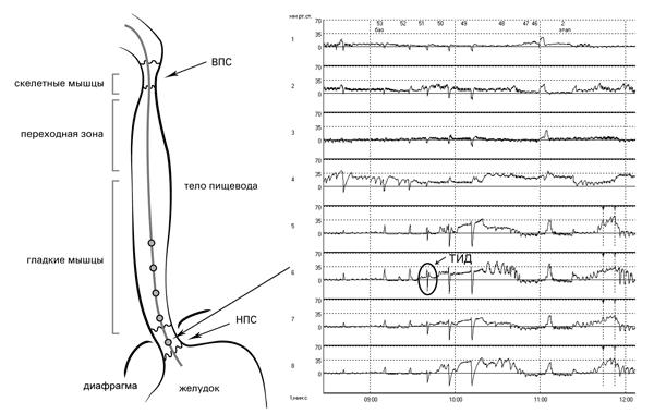 Рис. 9. Исследование двигательной функции пищевода. ТИД – точка инверсии дыхания. Соответствует смене положительной инспираторной дыхательной волны на отрицательную инспираторную волну, что указывает на переход из брюшной полости в грудную