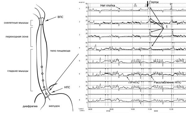 Рис. 11. Исследование двигательной функции пищевода. Датчики 5-8 располагаются в зоне повышенного давления. На графике определяется снижение уровня манометрической кривой до базовой линии вне какой-либо связи с актом глотания (ПРНПС). Далее регистрируется перистальтическая волна (1) (в ответ на глотание) и расслабление НПС