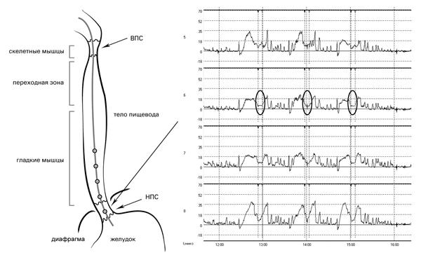Рис. 12. Исследование двигательной функции пищевода. Датчики 5-8 располагаются в зоне повышенного давления. Во время глотка наблюдается снижение тонуса НПС: снижение манометрической кривой практически до базовой линии с последующим подъёмом