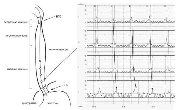 Рис. 14. Исследование двигательной функции пищевода. Перистальтическая волна распространяется с градиентом в дистальном направлении от 1 к 4 датчику (на графике отмечена стрелкой)