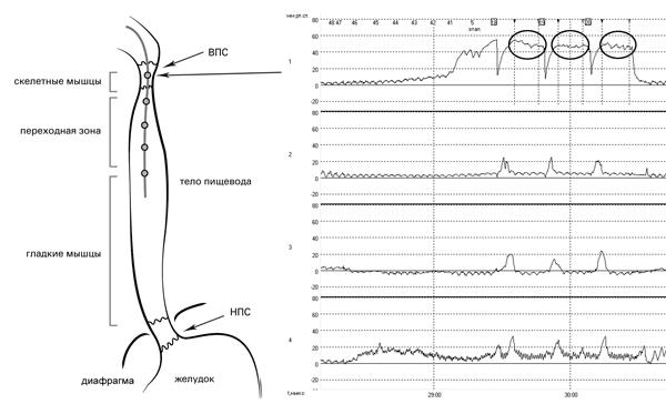 Рис. 15. Исследование двигательной функции пищевода. Датчик 1 располагается в зоне высокого давления ВПС: отмечается подъём манометрической кривой