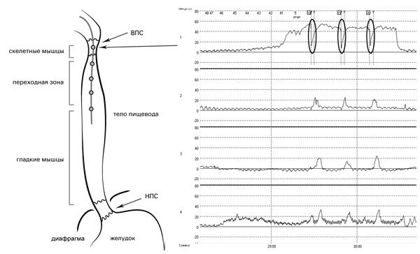Рис. 16. Исследование двигательной функции пищевода. Датчик 1 располагается в зоне высокого давления ВПС. Во время глотка отмечается резкое падение уровня давление в ВПС практически до базовой линии с последующим быстрым подъёмом до прежних показателей