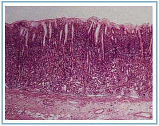 рефлюкс гастрит с кишечной метаплазией в препилорусе территории более дней