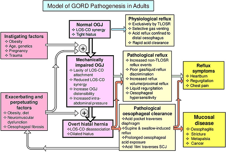 Figure 3. Model of GORD Pathogenesis in Adults