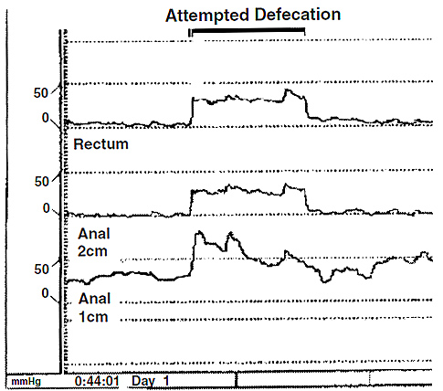 Figure 2. Rectal and anal pressure changes during attempted defecation in a constipated patient showing a dypsynergic pattern of defecation