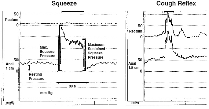 Figure 3. Normal squeeze and cough reflex test response. A method for calculating the rectal and anal pressure changes during these manoeuvres is also shown
