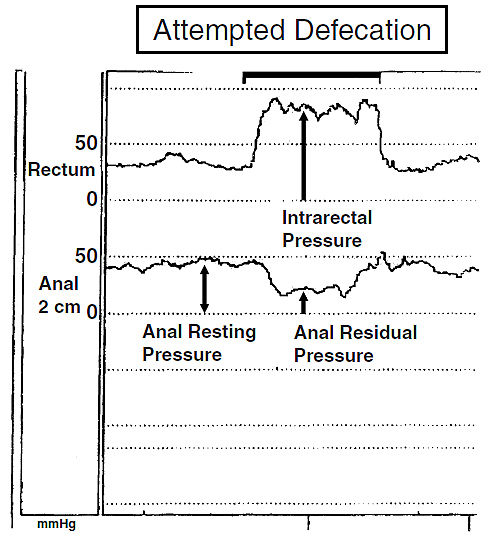 Figure 4. Normal rectal and anal pressure changes during normal defecation, also showing a method for calculating these pressure changes