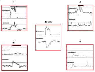 Типы диссинергической дефекации (Карлов А.В., Парфёнов А.И. )