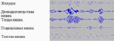 Рисунок 10. Пример регистрации электрогастроинтестинограммы больного язвенной болезнью.