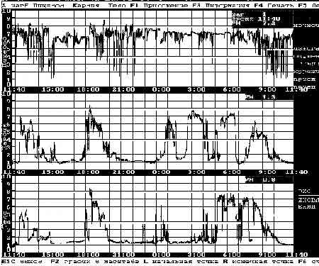 Рисунок 2. Результат регистрации 24-часового исследования внутриполостного рН у больного гастроэзофагеальной рефлюксной болезнью с использованием прибора «Гастроскан-24».
