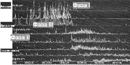 Рисунок 8. Пример регистрации фаз мигрирующего межпищеварительного моторного комплекса методом манометрии у здорового человека.