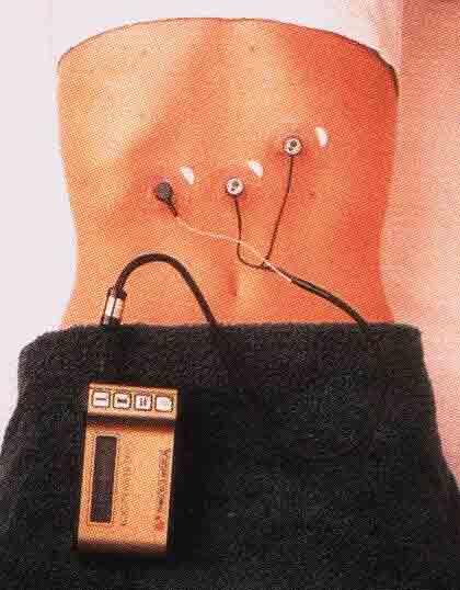 Рисунок 9. Портативный аппарат для электрогастрографии «Digitrapper EGG» фирмы «Synectics» (Швеция).