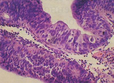 Тубулярная ворсинчатая аденома желудка. Выраженная дисплазия (×200) (Звенигородская А.П.)