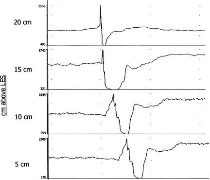 Antegrade (i.e. swallows) bolus movement detected by impedance changes of bolus presence progressing proximal to distal.