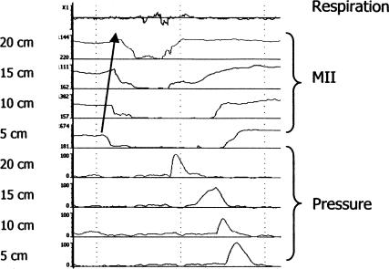 Combined MII-EM tracing in which retrograde bolus movement is detected by changes in impedance (MII) progressing distal to proximal followed by proximal to distal clearance of bolus a contraction wave.