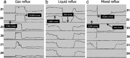 Impedance changes in ohms during reflux of gas, liquid, and mixed contents, obtained with a catheter incorporating six impedance measuring segments (Z1 to Z6), which are shown in the