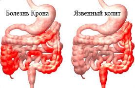 Болезнь крона боли в суставах инъекции гиалуроновой кислоты в суставы