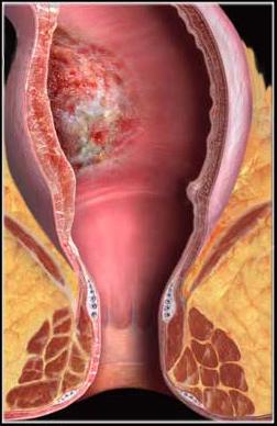 Рак толстого кишечника анализ крови Справка 302Н Первомайская