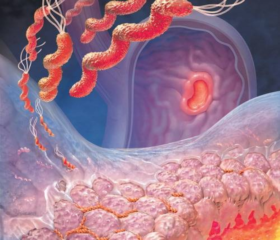 Атрофический гастрит, вызванный Хеликобактерной инфекцией. Из www.aif.by.